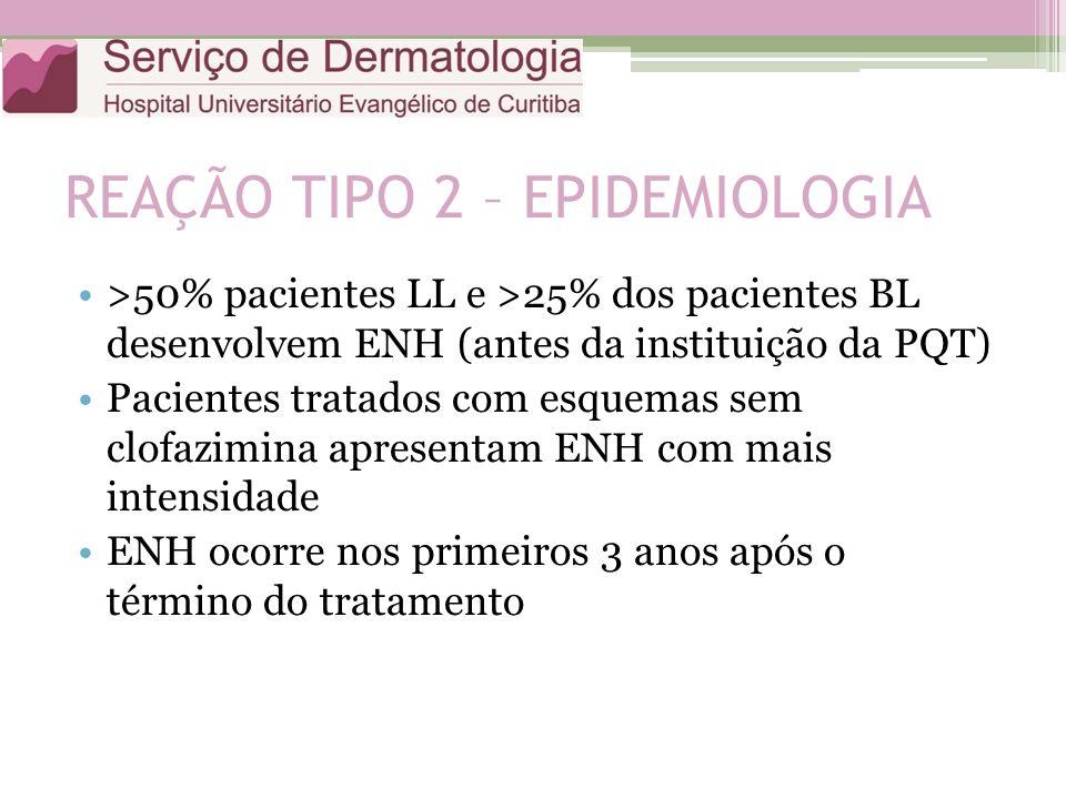 REAÇÃO TIPO 2 – EPIDEMIOLOGIA