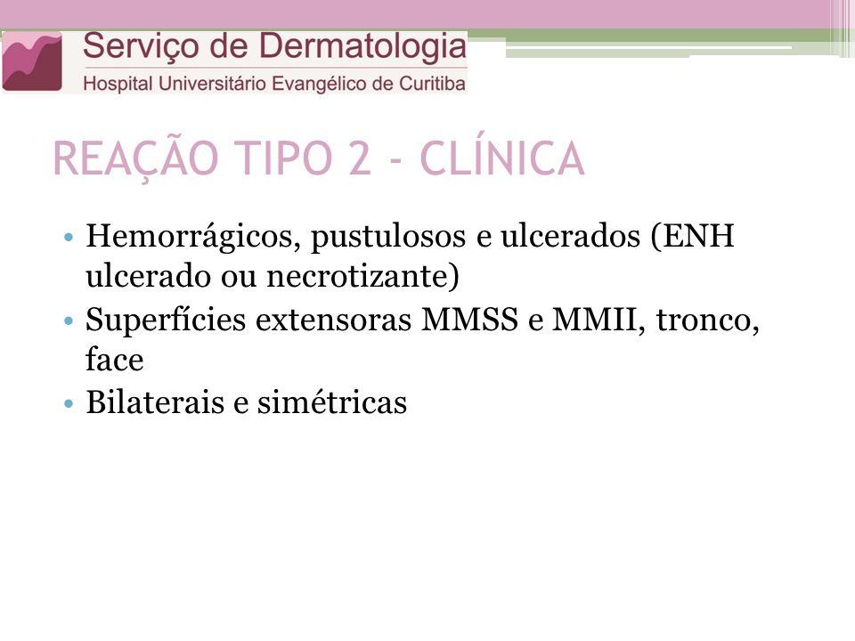REAÇÃO TIPO 2 - CLÍNICA Hemorrágicos, pustulosos e ulcerados (ENH ulcerado ou necrotizante) Superfícies extensoras MMSS e MMII, tronco, face.