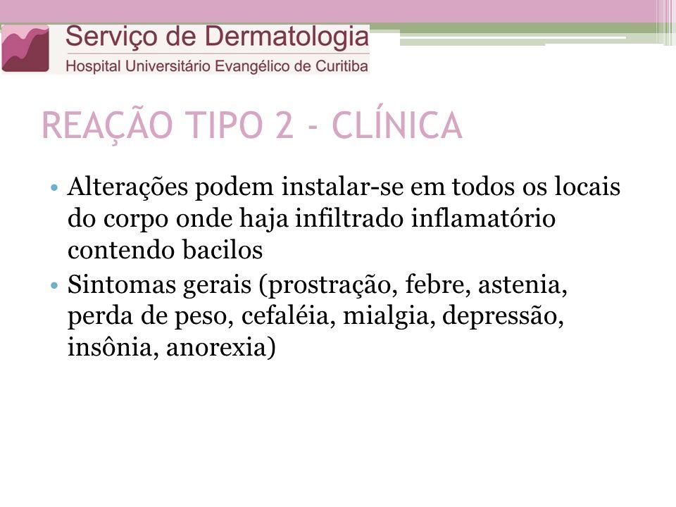 REAÇÃO TIPO 2 - CLÍNICA Alterações podem instalar-se em todos os locais do corpo onde haja infiltrado inflamatório contendo bacilos.