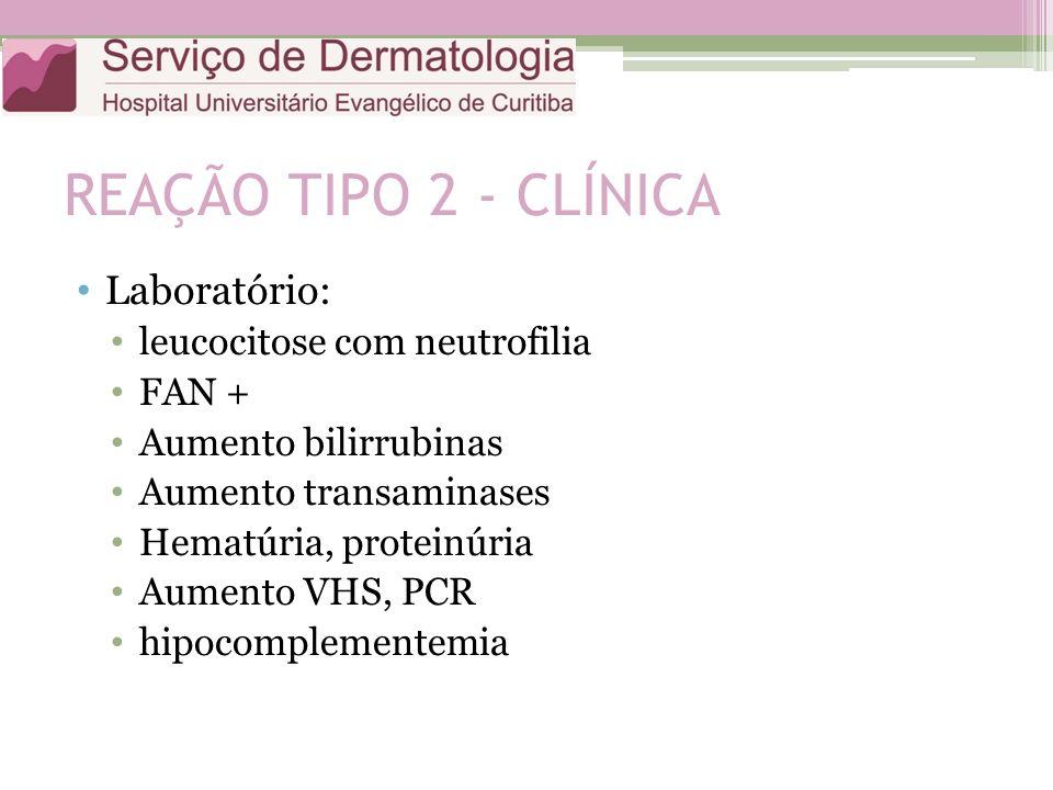 REAÇÃO TIPO 2 - CLÍNICA Laboratório: leucocitose com neutrofilia FAN +