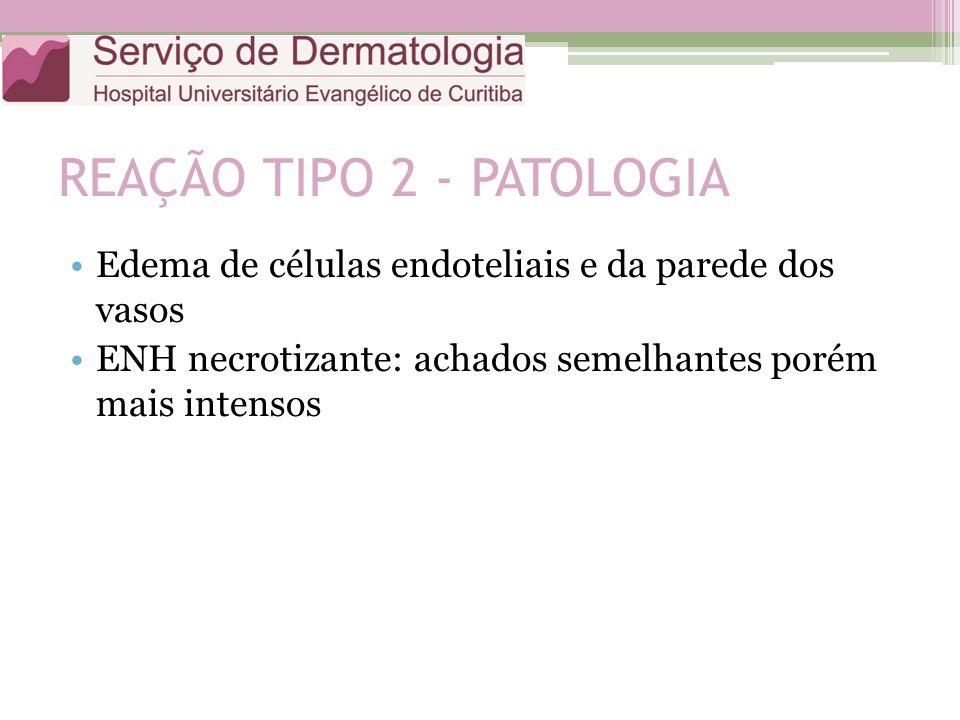 REAÇÃO TIPO 2 - PATOLOGIA