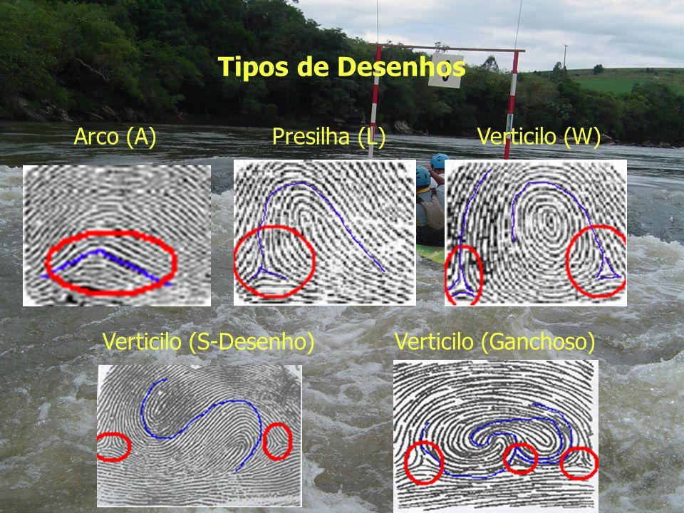 Tipos de Desenhos Arco (A) Presilha (L) Verticilo (W)
