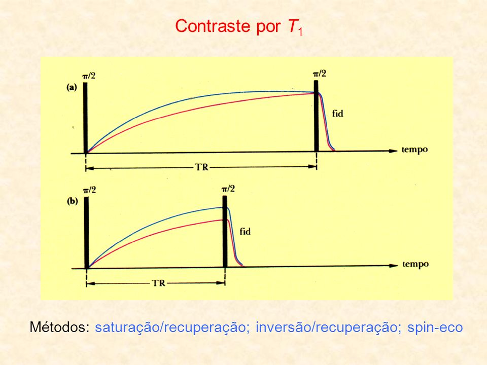 Contraste por T1 Métodos: saturação/recuperação; inversão/recuperação; spin-eco