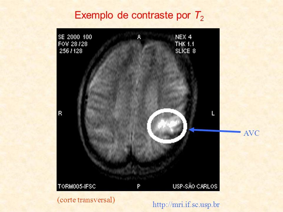 Exemplo de contraste por T2
