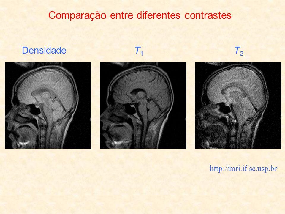 Comparação entre diferentes contrastes