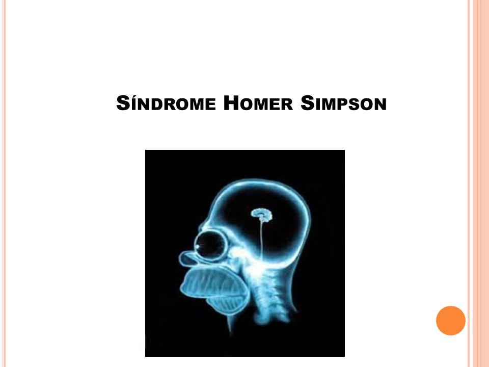 Síndrome Homer Simpson