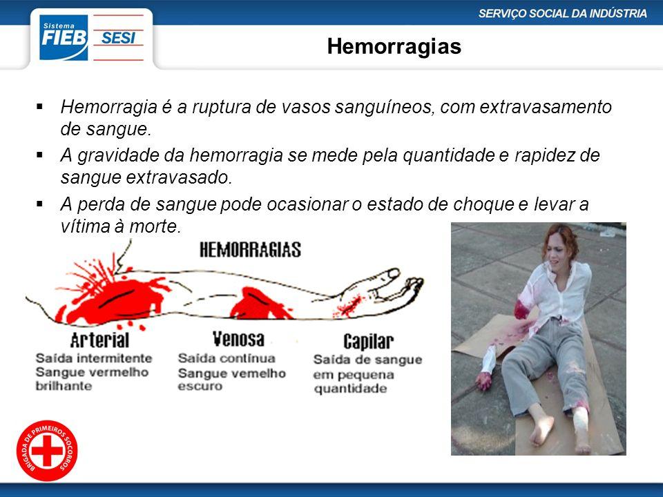 Hemorragias Hemorragia é a ruptura de vasos sanguíneos, com extravasamento de sangue.