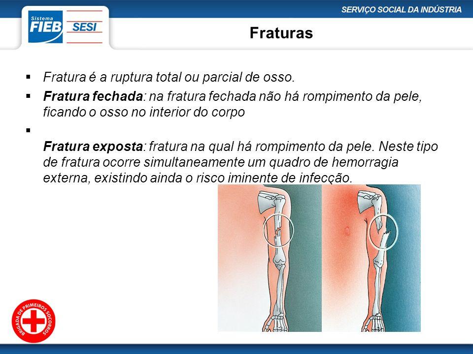 Fraturas Fratura é a ruptura total ou parcial de osso.