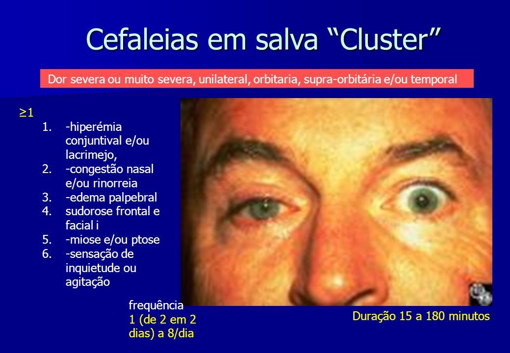 Cefaleias em salva Cluster