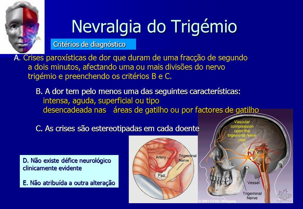 Nevralgia do Trigémio Critérios de diagnóstico.