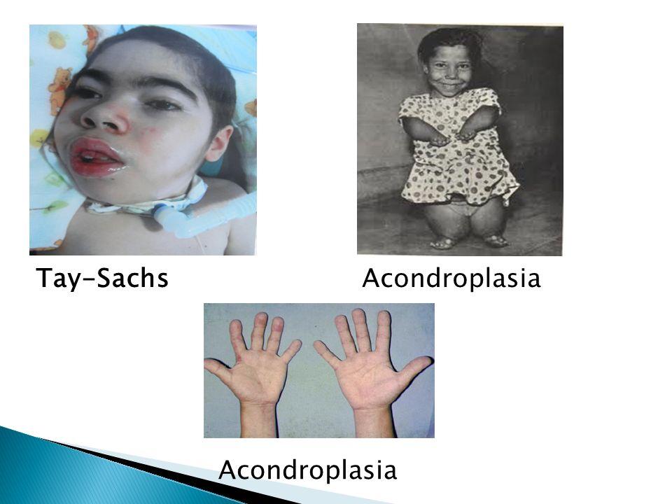 Tay-Sachs Acondroplasia Acondroplasia