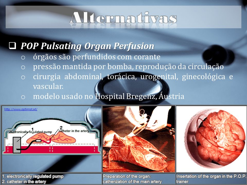Alternativas POP Pulsating Organ Perfusion