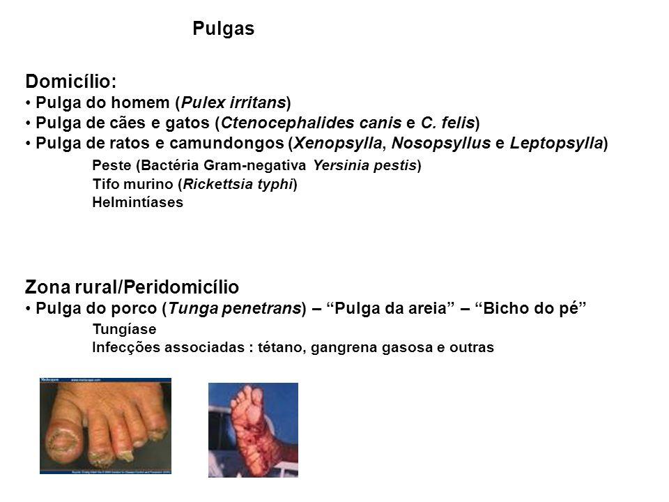 Peste (Bactéria Gram-negativa Yersinia pestis)
