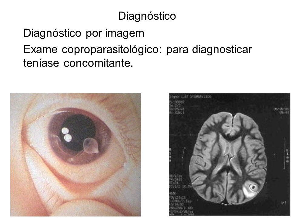 Diagnóstico Diagnóstico por imagem.