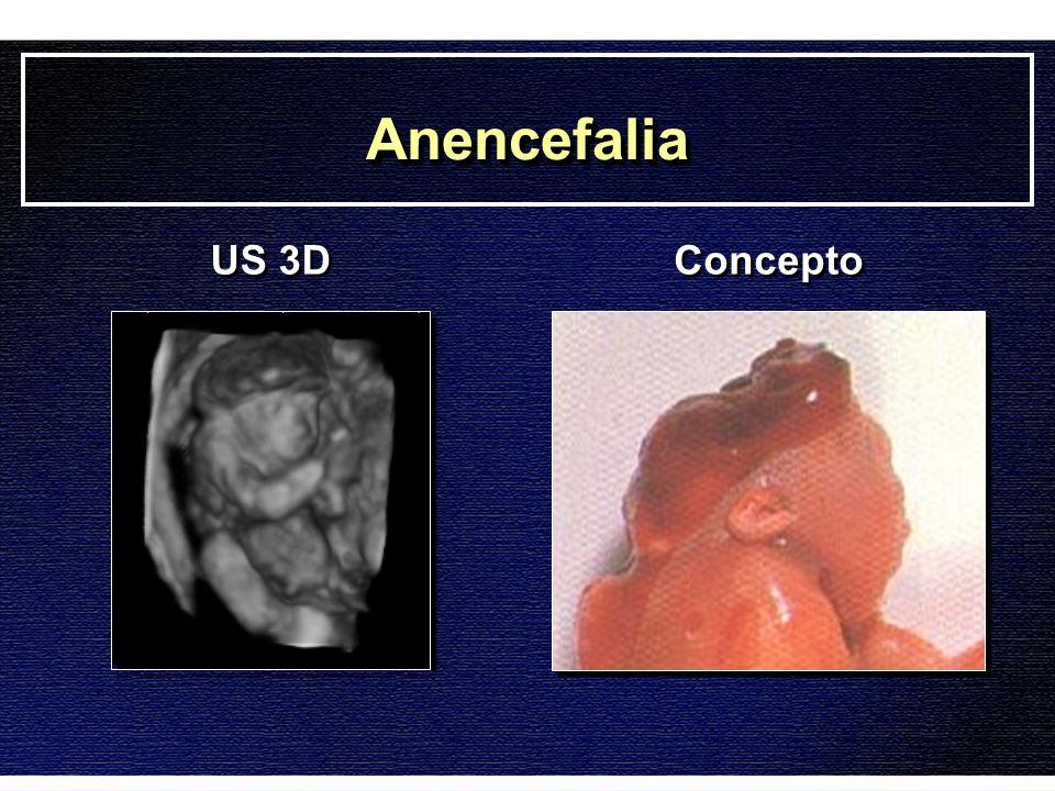 Anencefalia US 3D Concepto