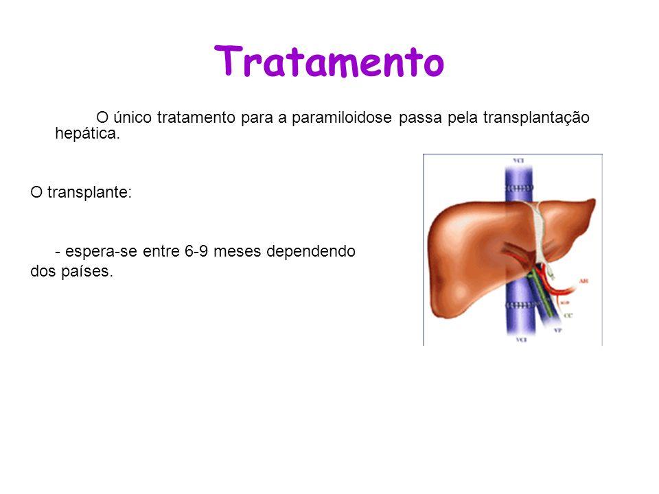 Tratamento O único tratamento para a paramiloidose passa pela transplantação hepática. O transplante: