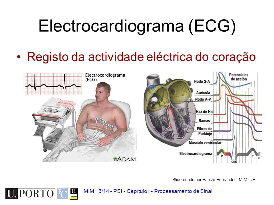 Electrocardiograma (ECG)
