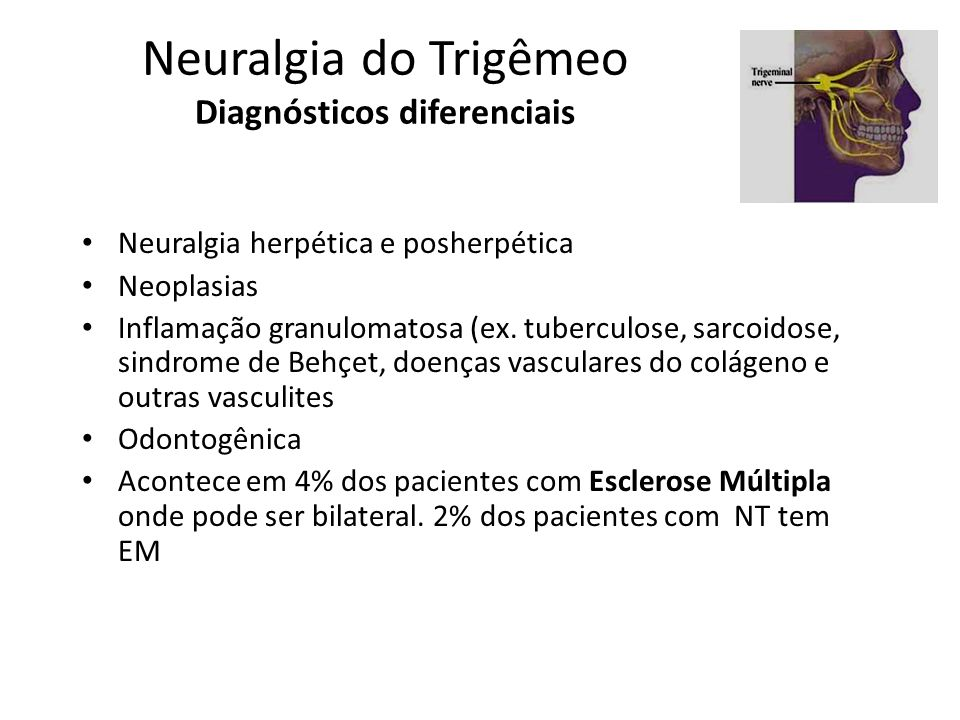 Neuralgia do Trigêmeo Diagnósticos diferenciais