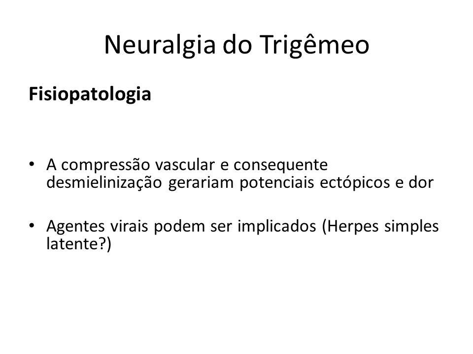 Neuralgia do Trigêmeo Fisiopatologia