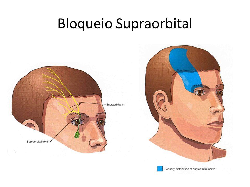 Bloqueio Supraorbital