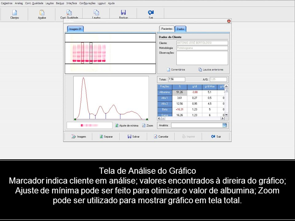 Tela de Análise do Gráfico Marcador indica cliente em análise; valores encontrados à direira do gráfico; Ajuste de mínima pode ser feito para otimizar o valor de albumina; Zoom pode ser utilizado para mostrar gráfico em tela total.