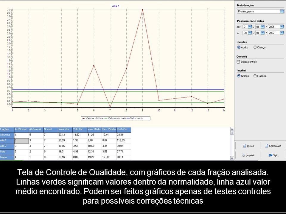 Tela de Controle de Qualidade, com gráficos de cada fração analisada
