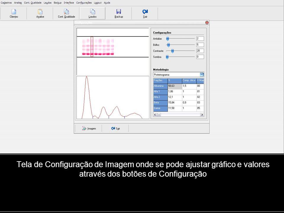 Tela de Configuração de Imagem onde se pode ajustar gráfico e valores através dos botões de Configuração