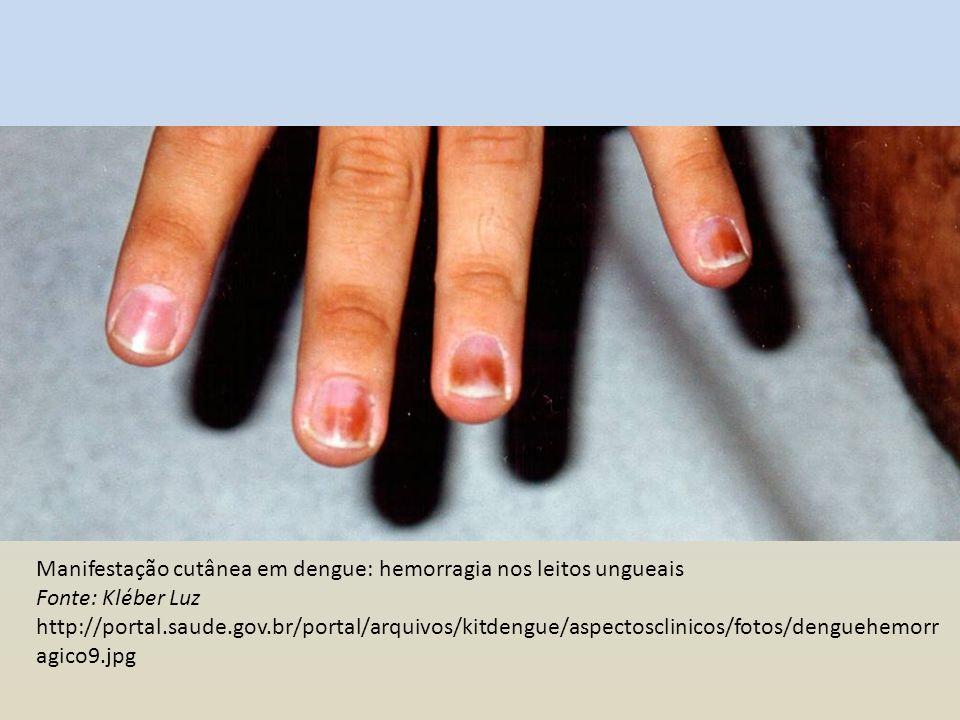 Manifestação cutânea em dengue: hemorragia nos leitos ungueais