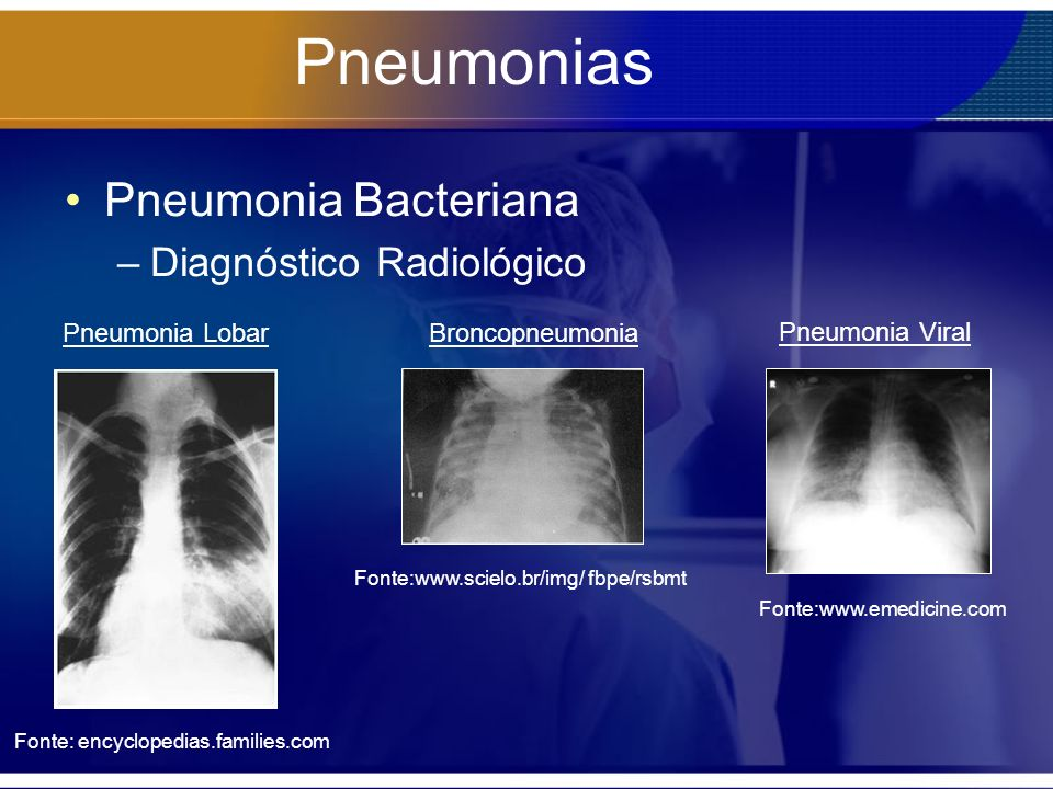 Pneumonias Pneumonia Bacteriana Diagnóstico Radiológico