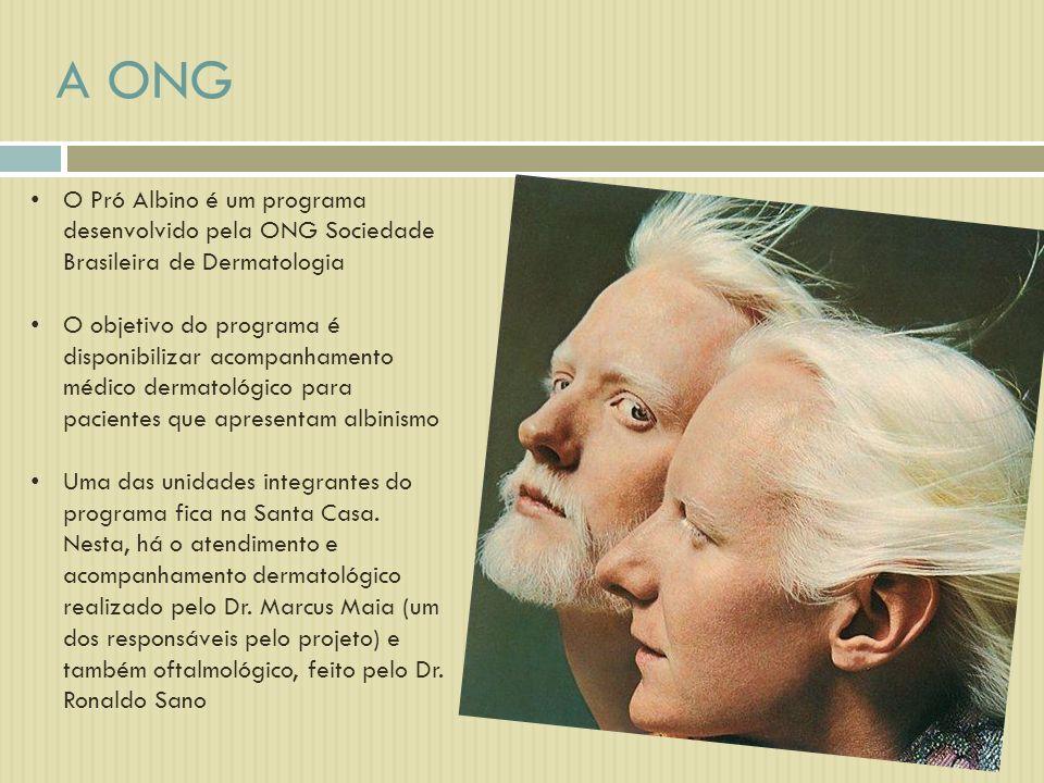 A ONG O Pró Albino é um programa desenvolvido pela ONG Sociedade Brasileira de Dermatologia.