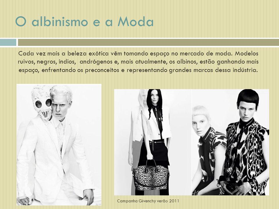 O albinismo e a Moda