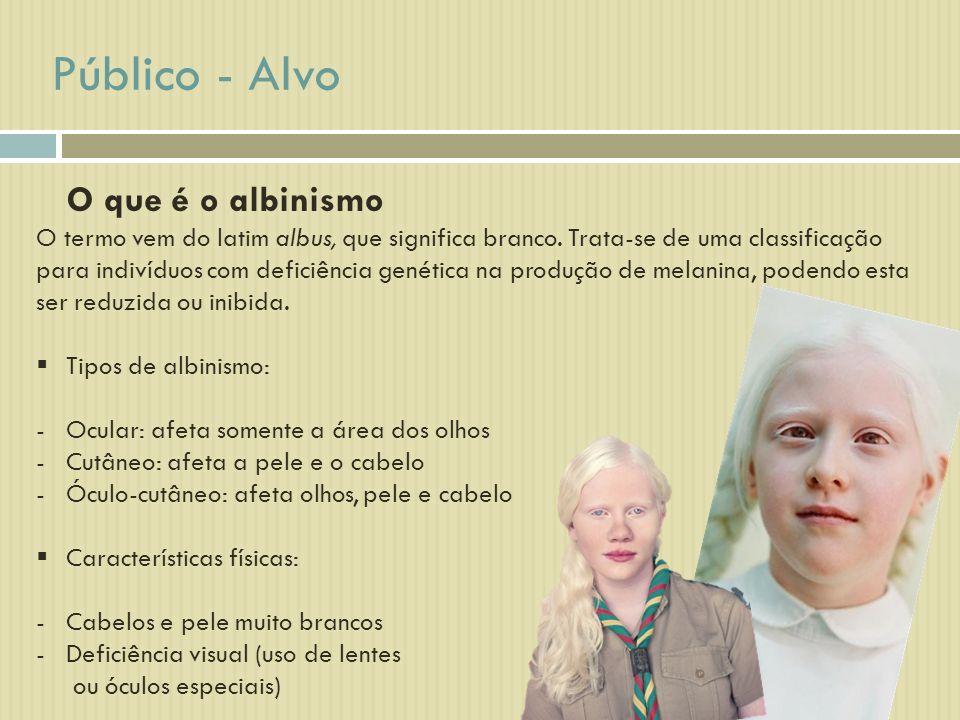 Público - Alvo O que é o albinismo