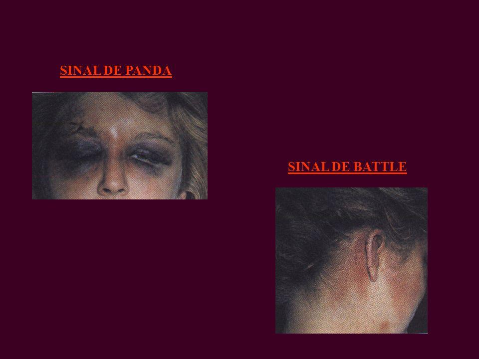 SINAL DE PANDA SINAL DE BATTLE