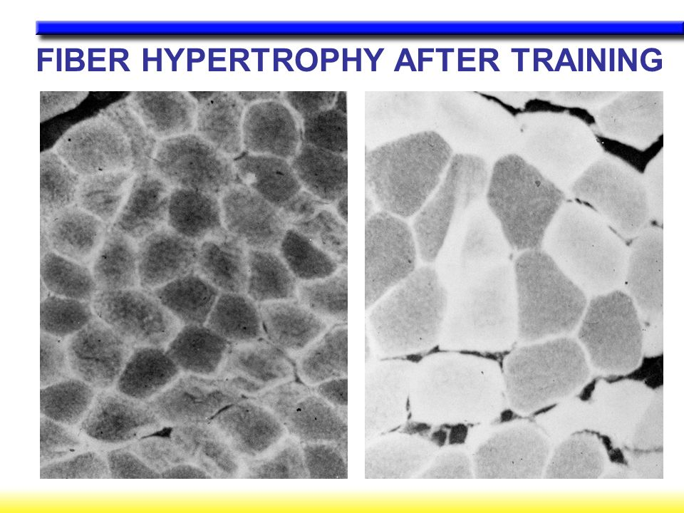 FIBER HYPERTROPHY AFTER TRAINING