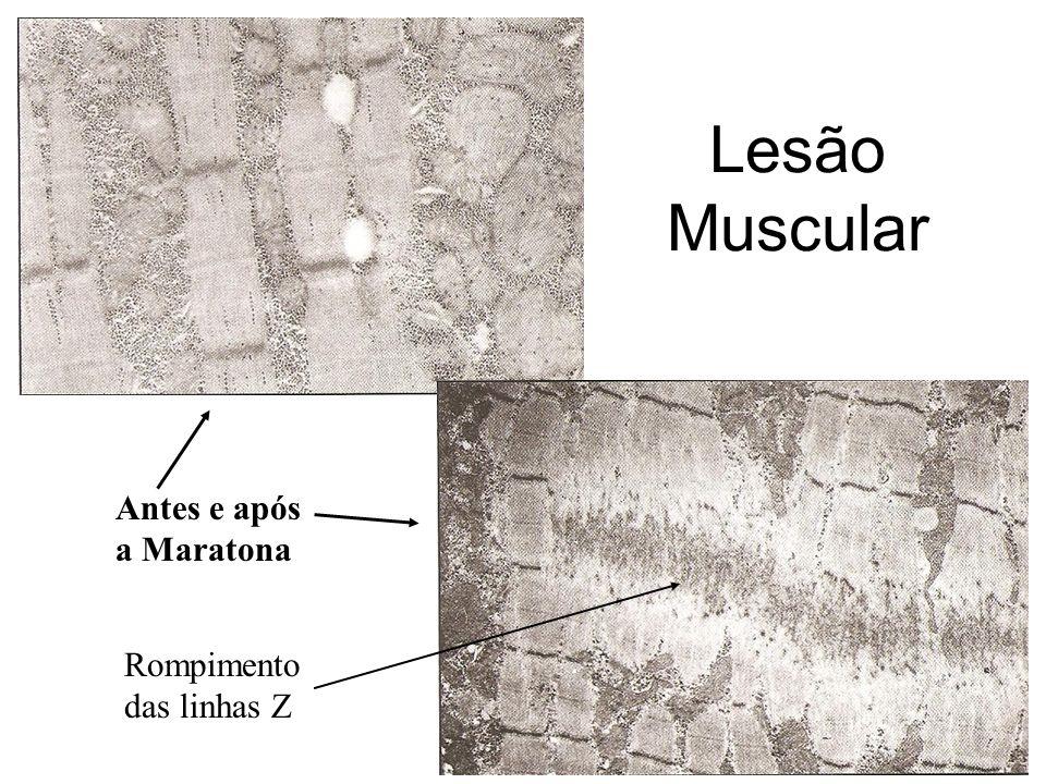 Lesão Muscular Antes e após a Maratona Rompimento das linhas Z