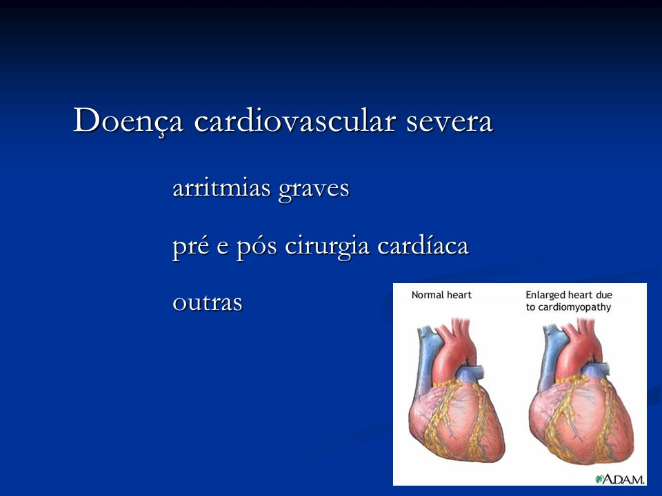 Doença cardiovascular severa