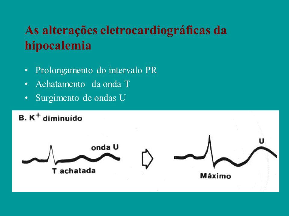 As alterações eletrocardiográficas da hipocalemia
