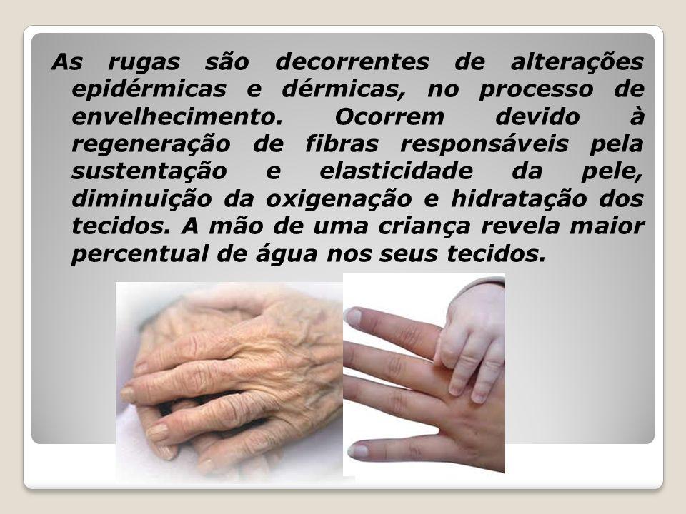 As rugas são decorrentes de alterações epidérmicas e dérmicas, no processo de envelhecimento.