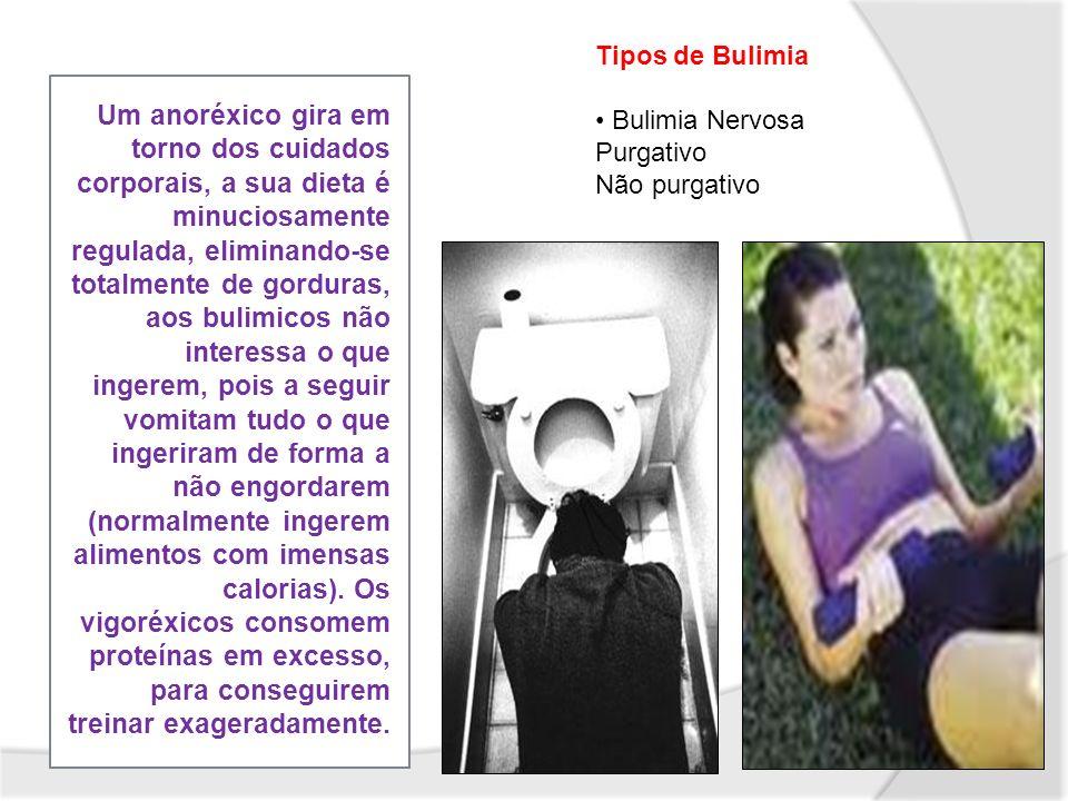 Tipos de Bulimia Bulimia Nervosa. Purgativo. Não purgativo.