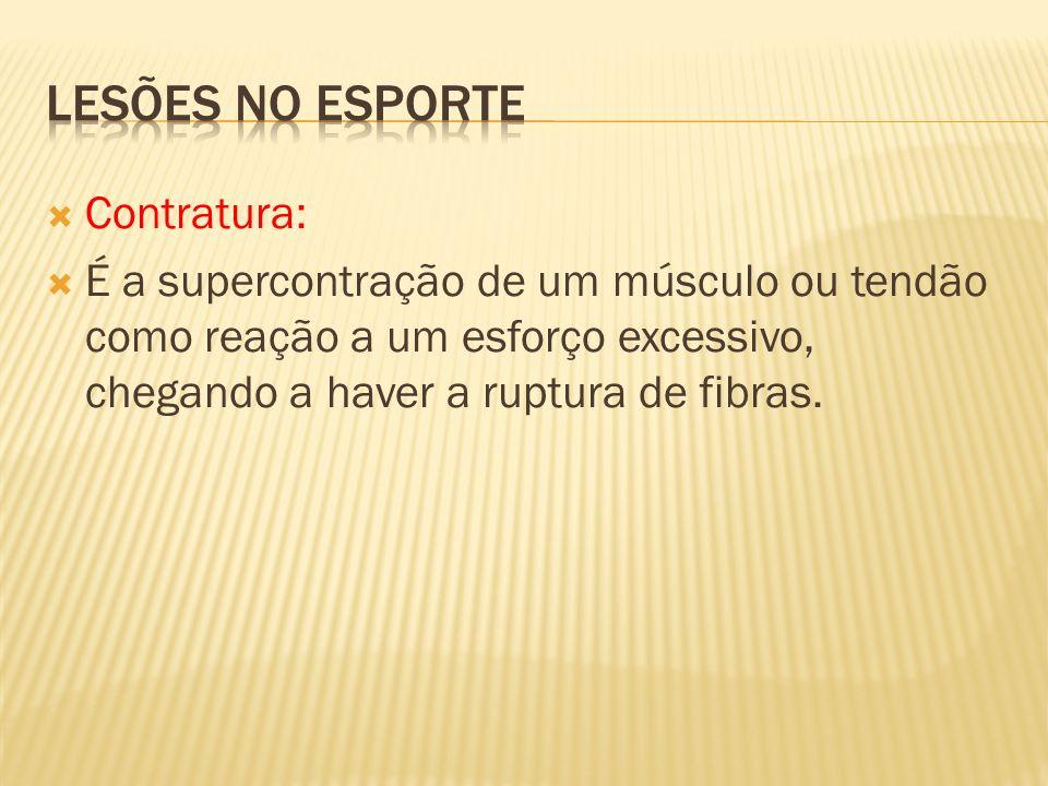 Lesões no esporte Contratura: