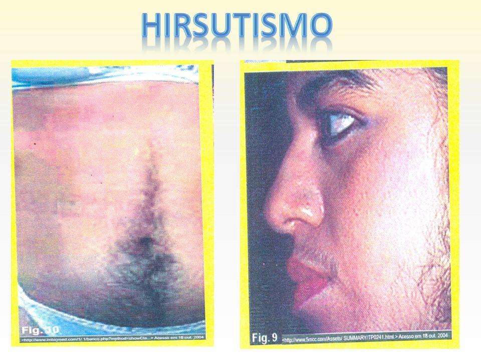 HIRSUTISMO