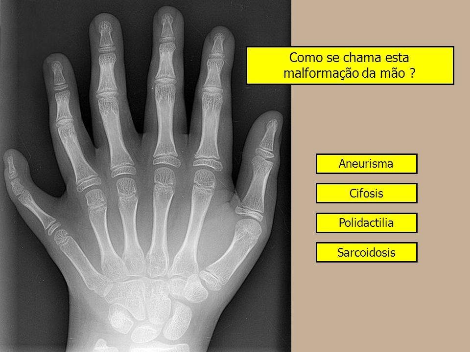 Como se chama esta malformação da mão