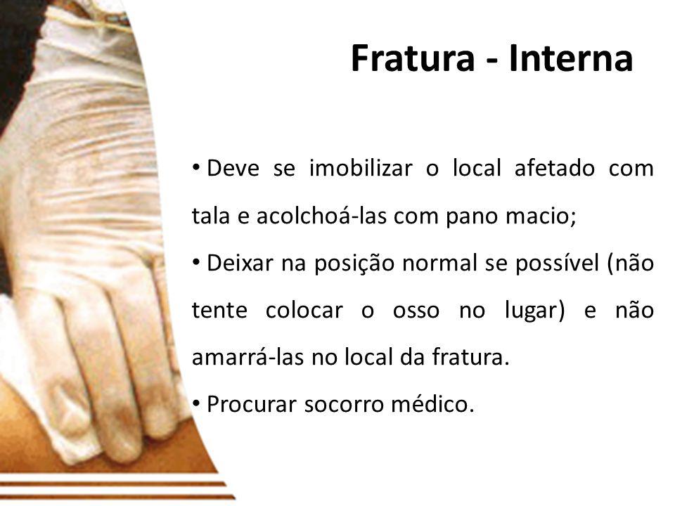 Fratura - InternaDeve se imobilizar o local afetado com tala e acolchoá-las com pano macio;