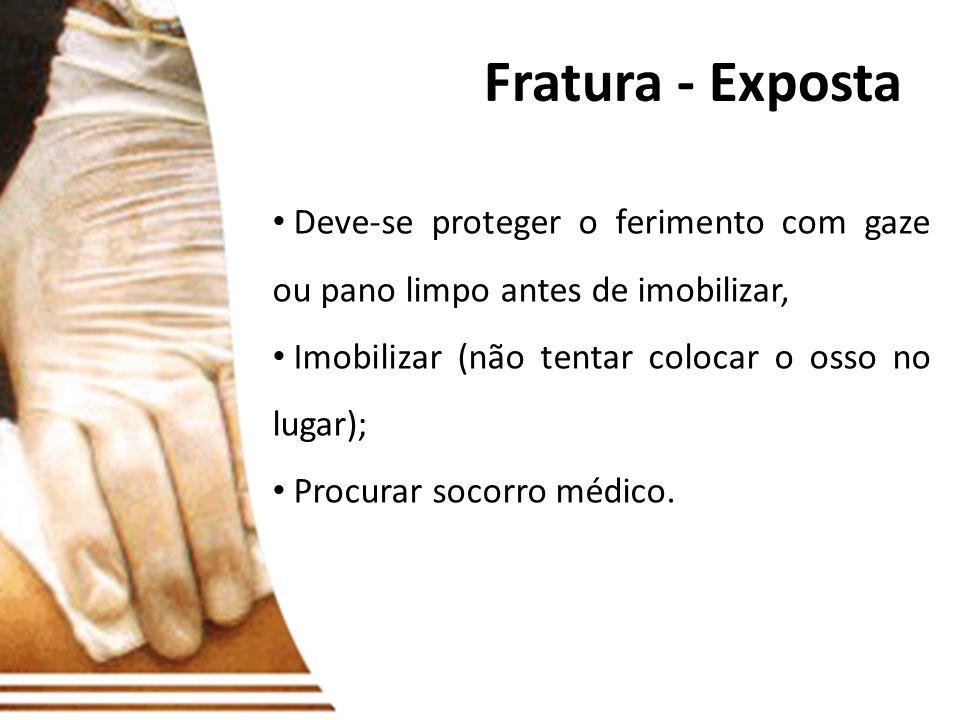 Fratura - Exposta Deve-se proteger o ferimento com gaze ou pano limpo antes de imobilizar, Imobilizar (não tentar colocar o osso no lugar);