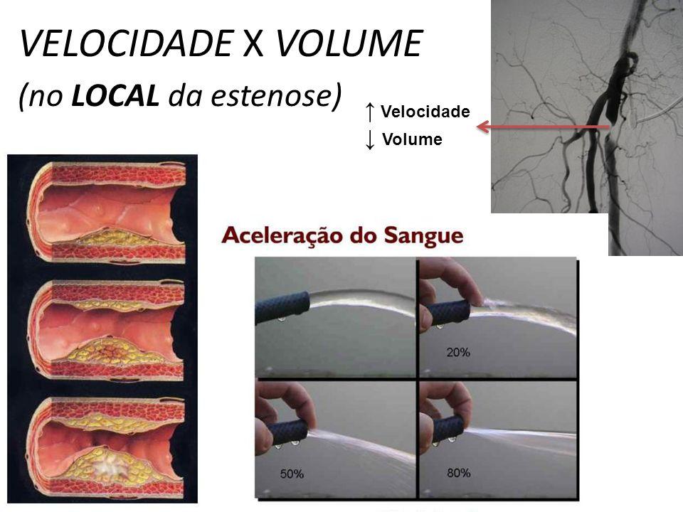 VELOCIDADE X VOLUME (no LOCAL da estenose)