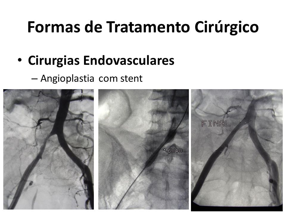 Formas de Tratamento Cirúrgico