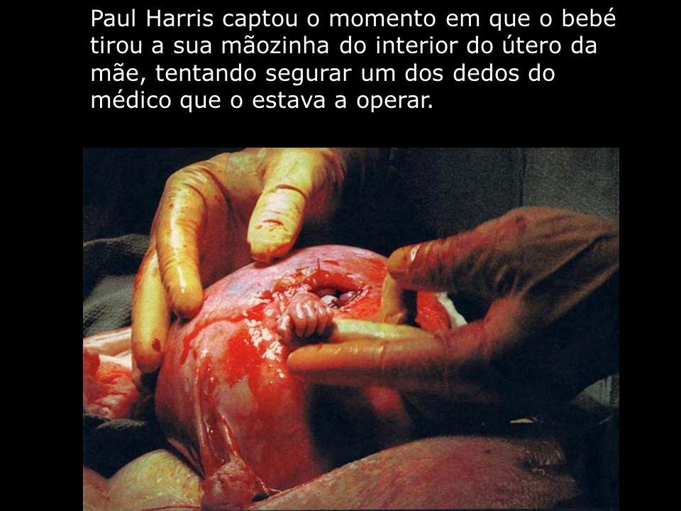 Paul Harris captou o momento em que o bebé tirou a sua mãozinha do interior do útero da mãe, tentando segurar um dos dedos do médico que o estava a operar.