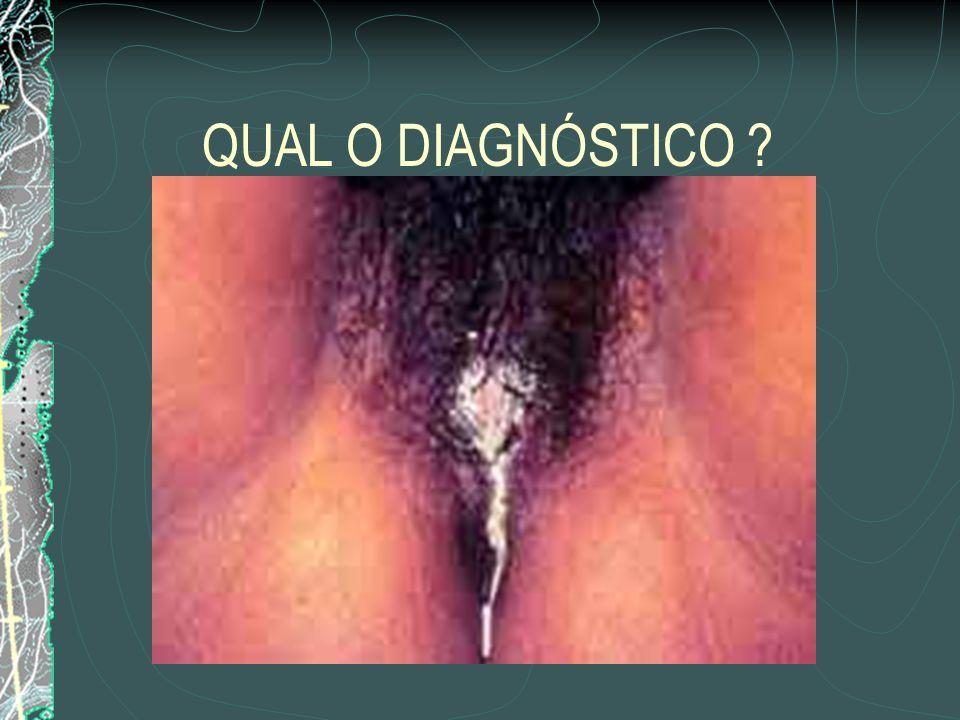 QUAL O DIAGNÓSTICO