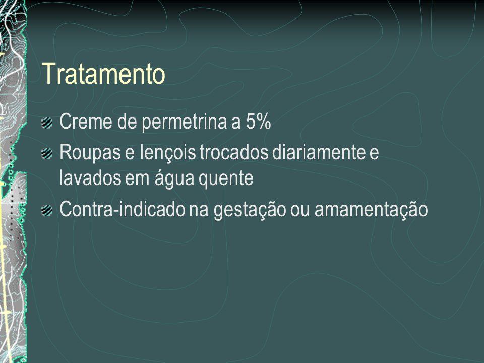 Tratamento Creme de permetrina a 5%