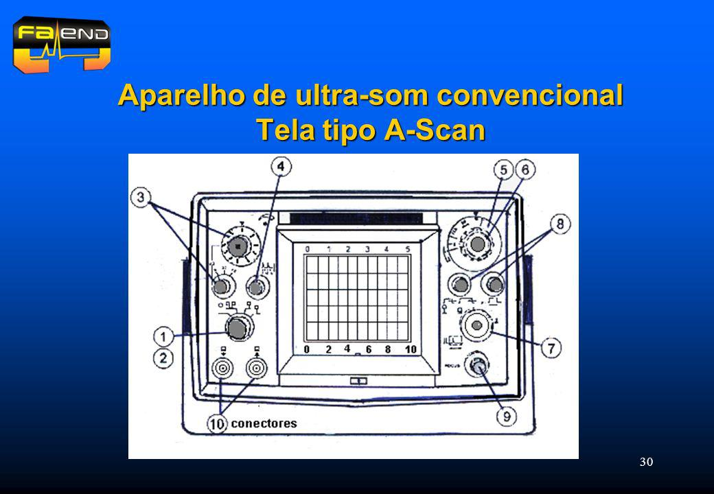 Aparelho de ultra-som convencional Tela tipo A-Scan